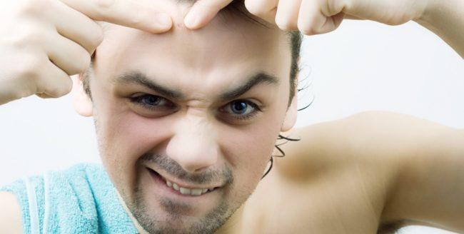 Cum scapi de acnee dacă ești bărbat