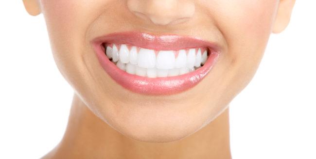 Alimente care îți pătează dinții
