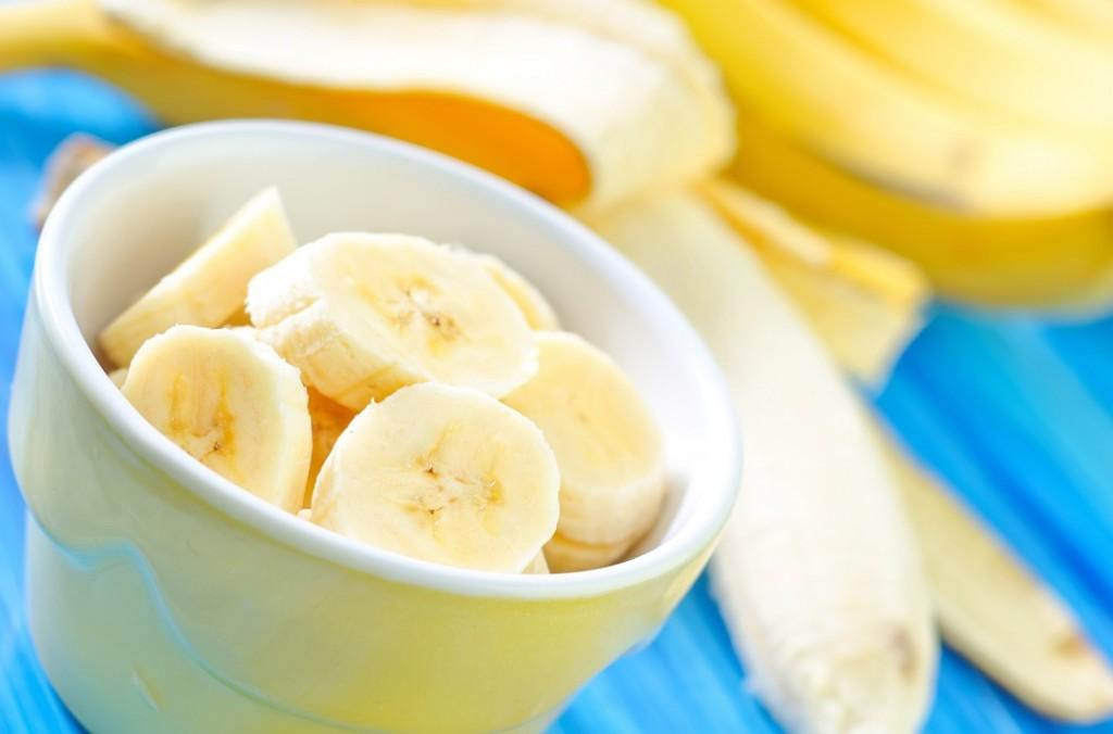 banane_38377844
