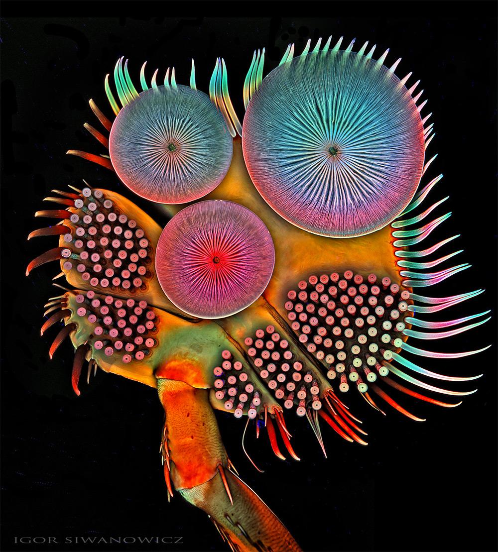 microorganisme-vazute-la-microscop-2