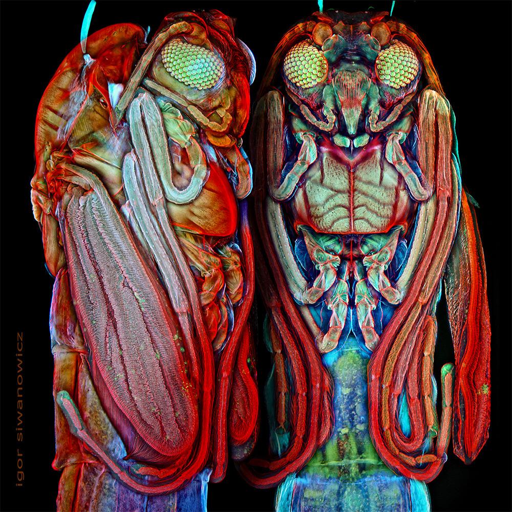 microorganisme-vazute-la-microscop-3
